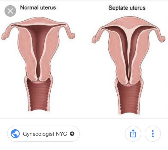 Septum Uterus